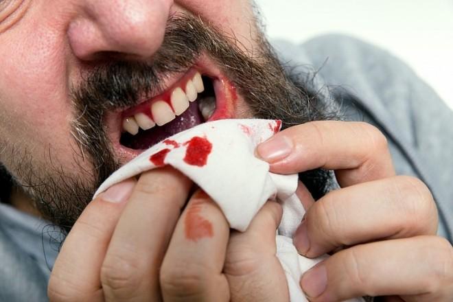 К чему снятся выпавшие зубы